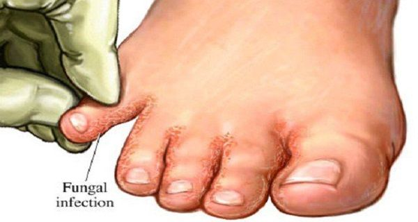 During the summer, the feet sweat more than they usually do, in other seasons, so there is a greater probability of developing fungal infections in the area surrounding the toes. Toenails are more frequently affected than the fingernails. The medical name for a fungal nail infection is onychomycosis.It's not usually serious, but can be unpleasantand