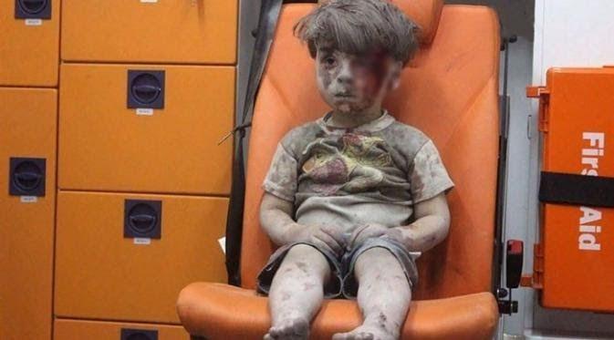 Read Gaya Hidup: Alami Pendarahan Internal Kakak Omran Tewas di Aleppo