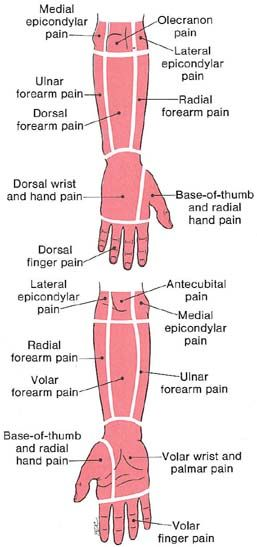 forearm and hand trigger point areas