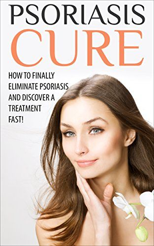 Psoriasis Cure: The Most Effective, Permanent Solution to Become Psoriasis Free For Life! (psoriasis cure, psoriasis, psoriasis treatment, psoriasis diet, ... remedies for psoriasis, scalp psoriasis)