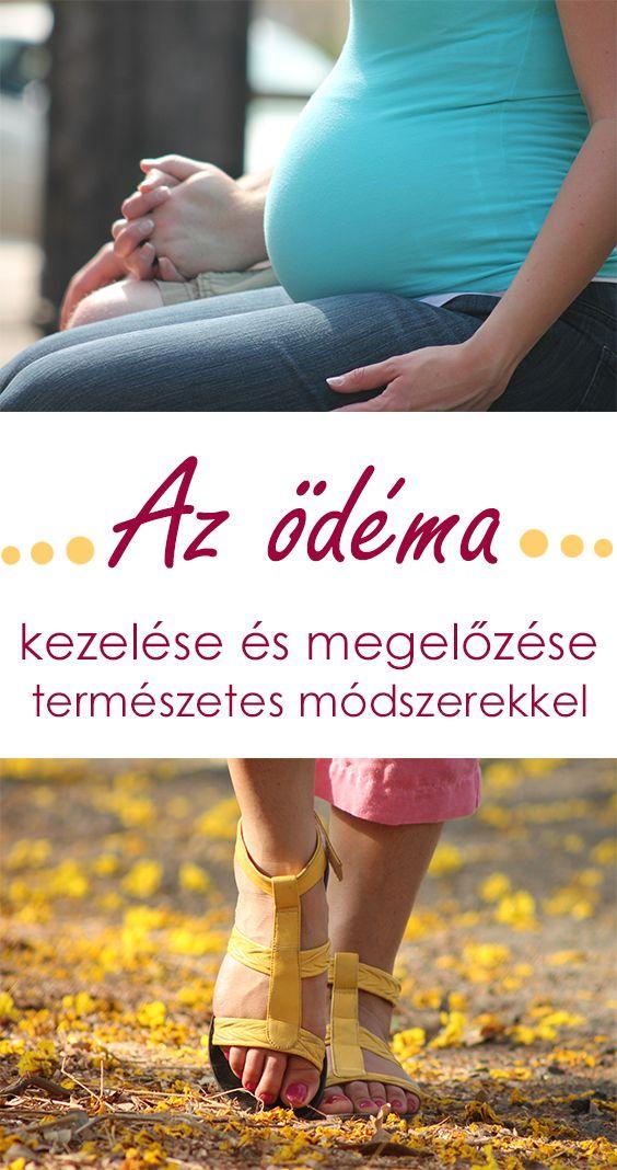 Ödémával (vízfelhalmozódás) majd minden nő találkozik a várandósság során. Ez a jelenség lehet természetes velejárója a várandósságnak - megváltozik a szervezet anyagcseréje - de jelezheti súlyos kórkép (toxaemia, gestosis) kialakulását is