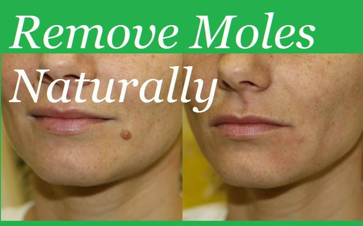 Everyone has a mole, which can look and feel different. It can be rough or smooth, flat or a bit ele...