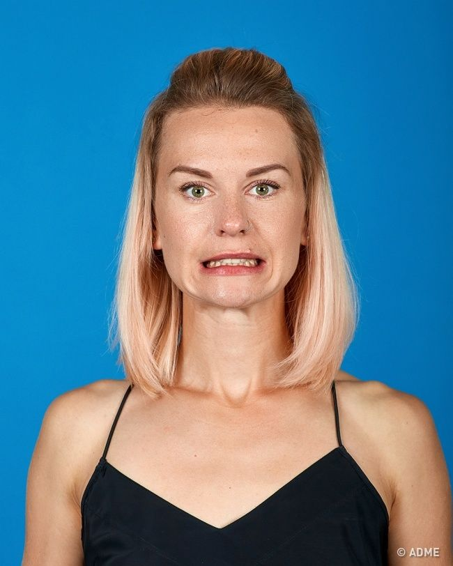 Гимнастика для лица (фейсбилдинг) была разработана немецким пластическим хирургом Рейнхольдом Бенцом. Это метод тренировки, с помощью которого можно восстановить тонус мышц лица и сократить морщины. П...