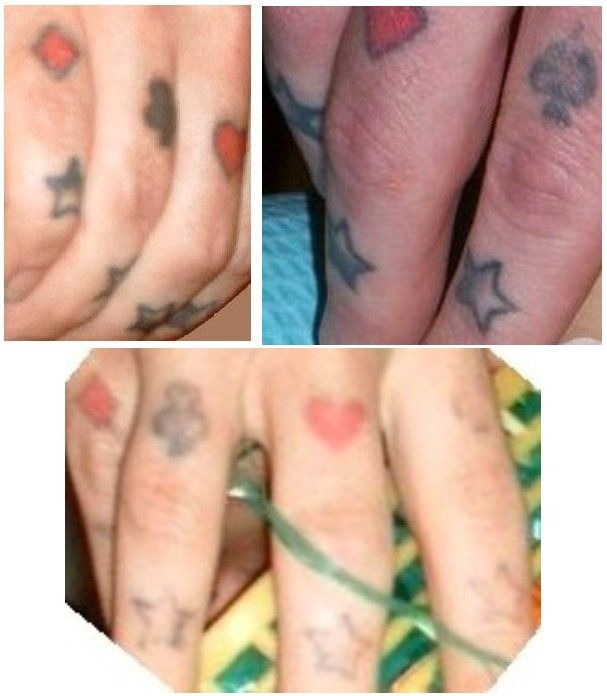 40 best hand tattoo removal images on pinterest arm for How effective is tattoo removal cream