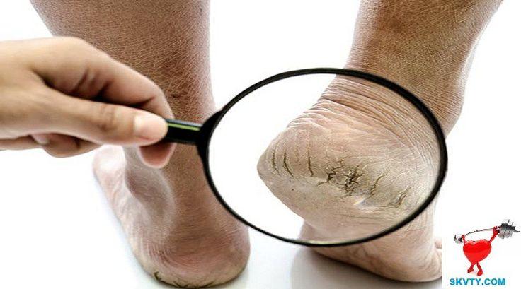 Phương pháp mạnh mẽ điều trị nứt gót chân trong 1 tuần
