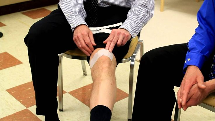 Best Self-Treatment for Chondromalacia (Patellofemoral Pain)