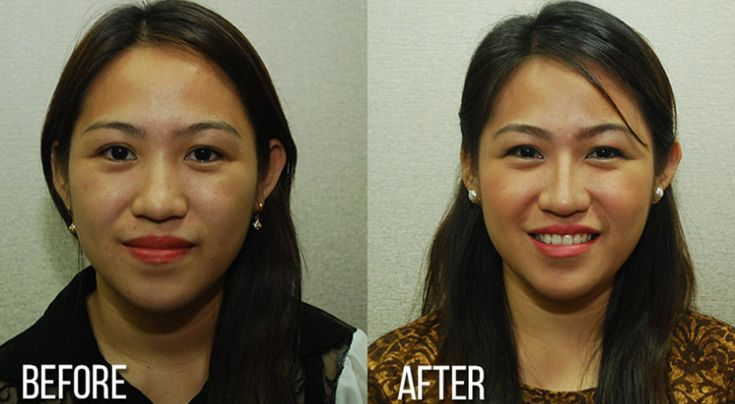 Asian nose job before after — pic 1