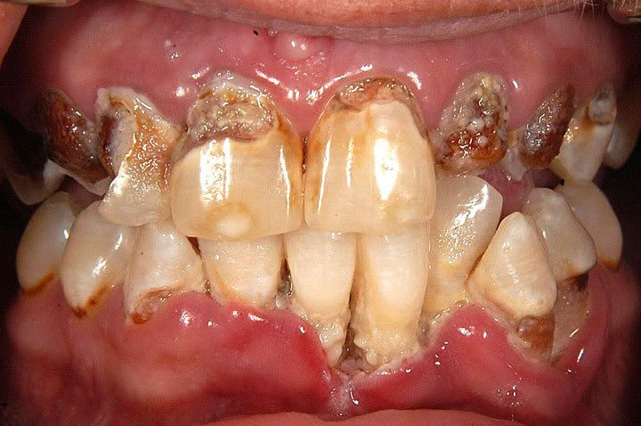 Did you know that Methamphetamine use affects your dental health?