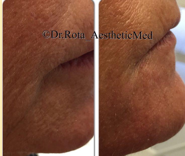 Mentolabial folds / Radiesse pre e post - lateral view