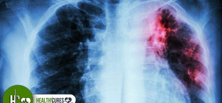 Muszáj ezt megcsinálnod! Dohányzol? Ez megmentheti a tüdődet!