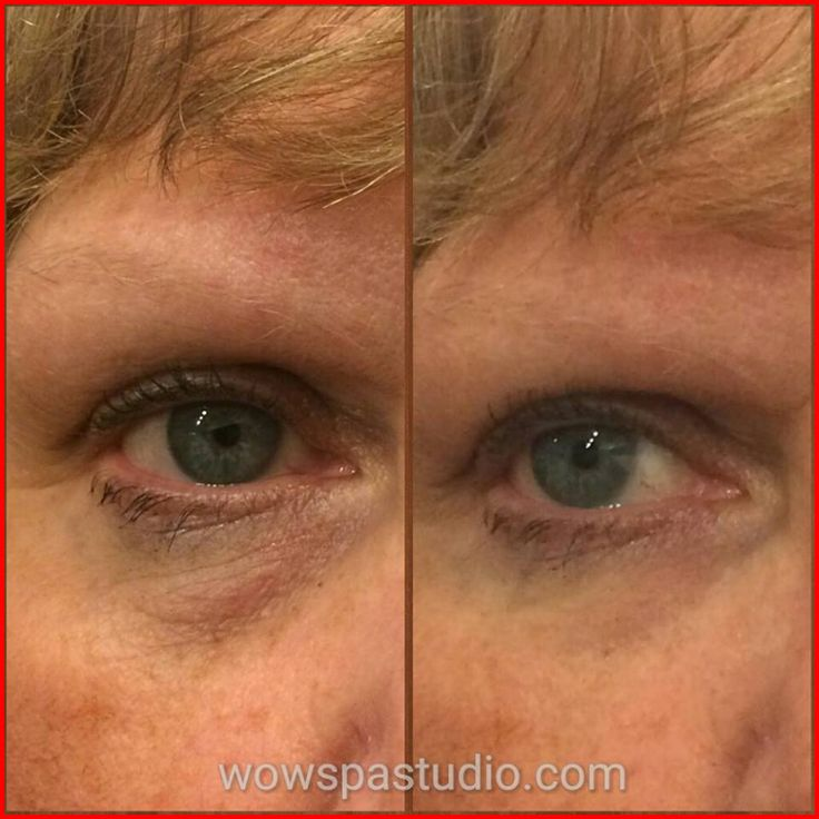 This lady didn't think she really needed Instantly Ageless as she didn't have many lines....but look what she looks like after just 2 minutes of applying the product. http://bit.ly/1BUkriD