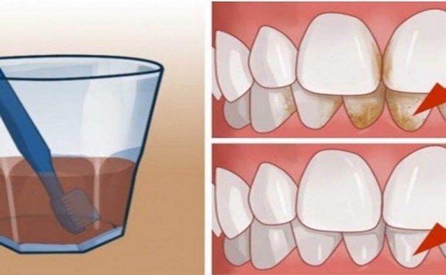Bochechos com os produtos adequados são muito importantes para completar a higienização da boca. Esses processos combatem as bactérias e evitam o desenvolvimento da placa