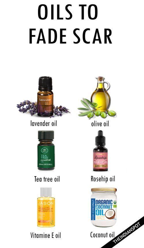Oils to fade scar – coconut, vitamin e oil, lavender etc