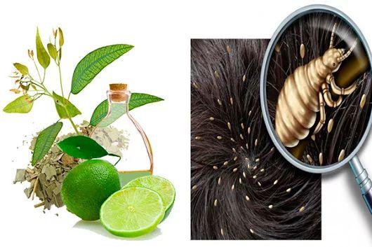 Excelente remedio casero con eucalipto y limón para eliminar los piojos