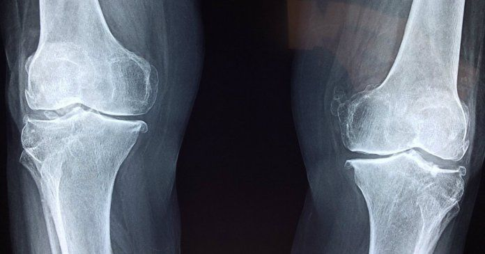 15++ What is osteoporosis of the knee viral
