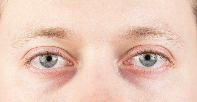Los glúteos como la cara, se clasifican según su silueta. Para sacar partido a la forma de tus glúteos hay maneras específicas de ejercitarlo y tonificarlo.