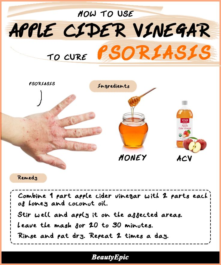 Apple Cider Vinegar for Psoriasis: Effective Remedies to Try at Home