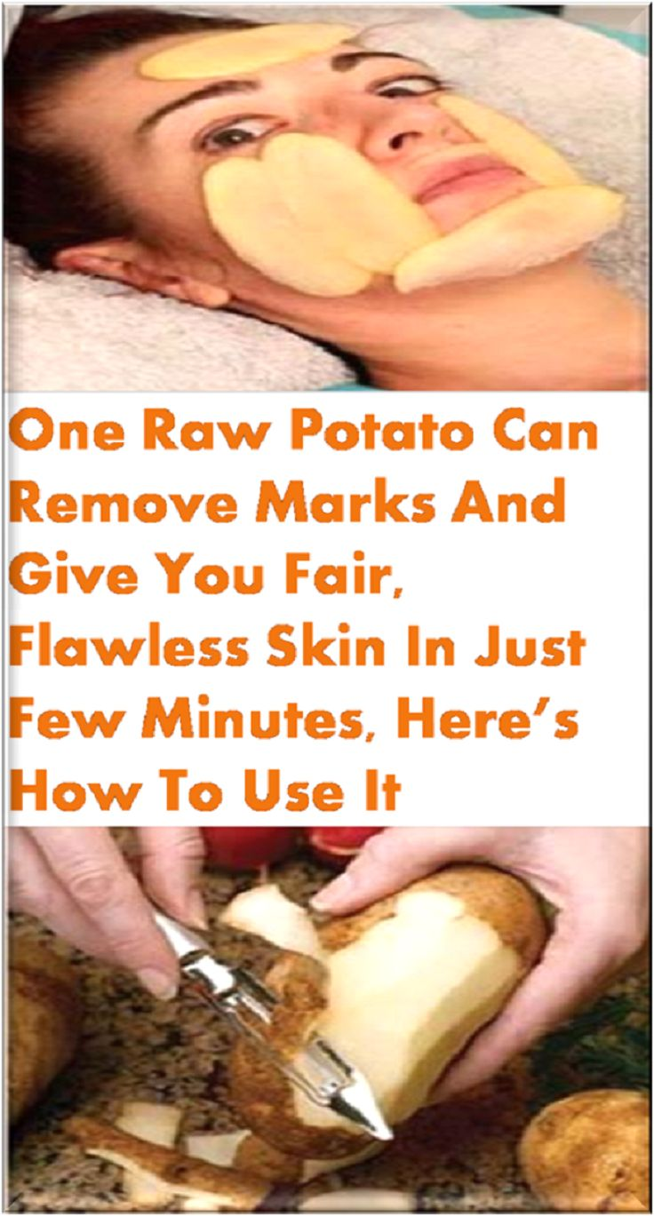 One Raw Potato Can Remove Marks And Give You Fair Flawless Skin In Just Few Minutes Heres How To Use It