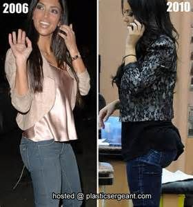 Kim Kardashian - Before and After having Fat Transfering Procedure. The more famous she became, the bigger her Butt got...