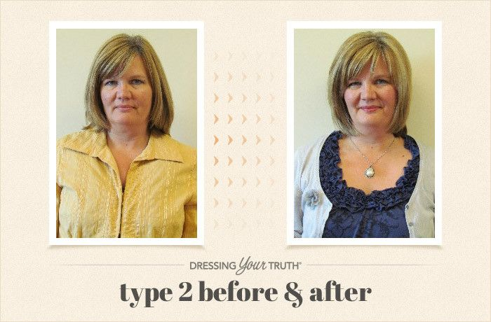 Rachel DYT-Type-2-Before-And-After