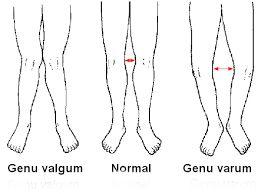 Genu valgum and varum