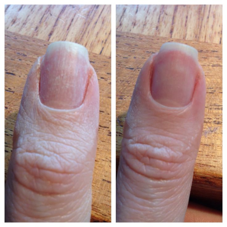 Over dehydrated nail with acetone. Treated with IBX and results were pretty good! This is after only one treatment