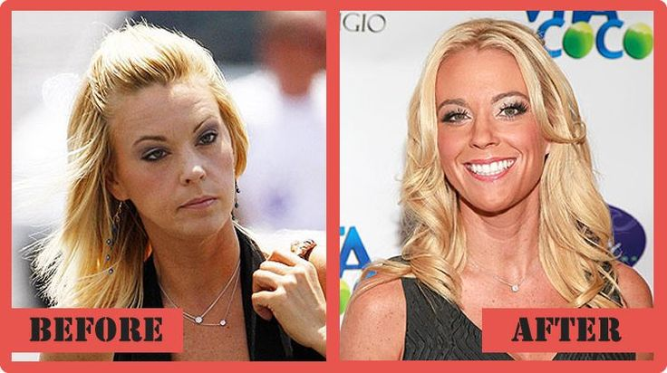 kate gosselin Plastic Surgery Before and After Kate Gosselin Plastic Surgery #KateGosselinPlasticSurgery #KateGosselin #celebritypost