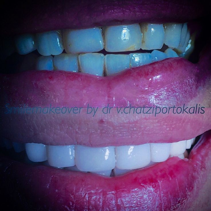 New smile|Direct veneers