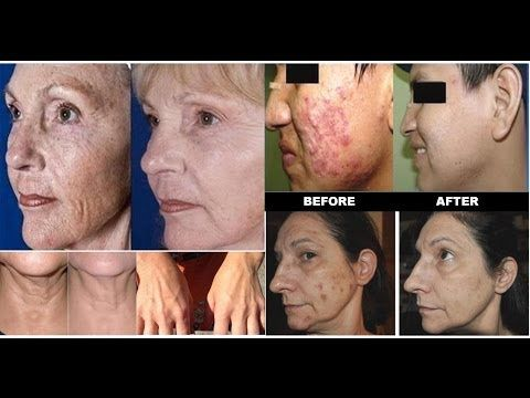Jeunesse® Global LUMINESCE™ Amazing Before & After Photos - Www.crowson.jeunesseglobal.com