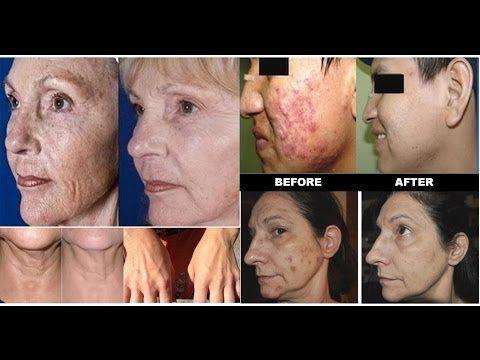 Luminesce regeneration of skin cells stem cell technology repairs skin straight up- no bull