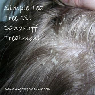Simple tea tree oil dandruff treatment / http://hugatreewithme.com/3/post/2013/02/beauty-recipe-simple-tea-tree-oil-dandruff-treatment.html