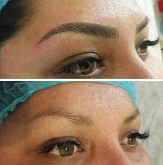 Descripción:  Es una técnica en la que se implanta un pigmento en la primera capa de la piel para darles forma y cuerpo a las cejas.  Consis...