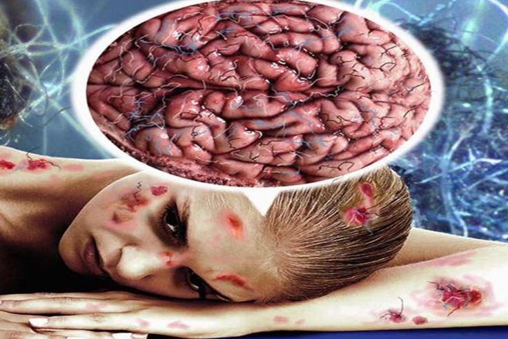 Ciri Ciri Penyakit Hiv...Read More