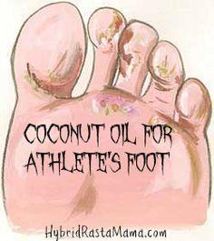 Coconut Oil for Athlete's Foot (Tinea Pedis)  Hybrid Rasta Mama
