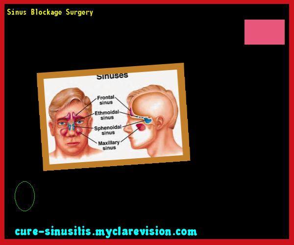 Sinus Blockage Surgery 090948 - Cure Sinusitis