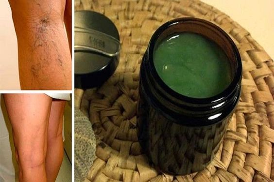 Mother Heals Varicose Veins With This Simple Recipe From Old Granny. The Results Are Almost Immediate!