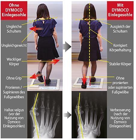 Einlagen nach dem DyMoCo-System für den täglichen Gebrauch Eine schlechte Körperhaltung und eine damit verbundene Ermüdung kann mithilfe der Zehen    verbessert werden. Wie die Laufgeschwindigkeit durch eine Verbesserung der...