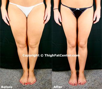 how to get super skinny legs in a week