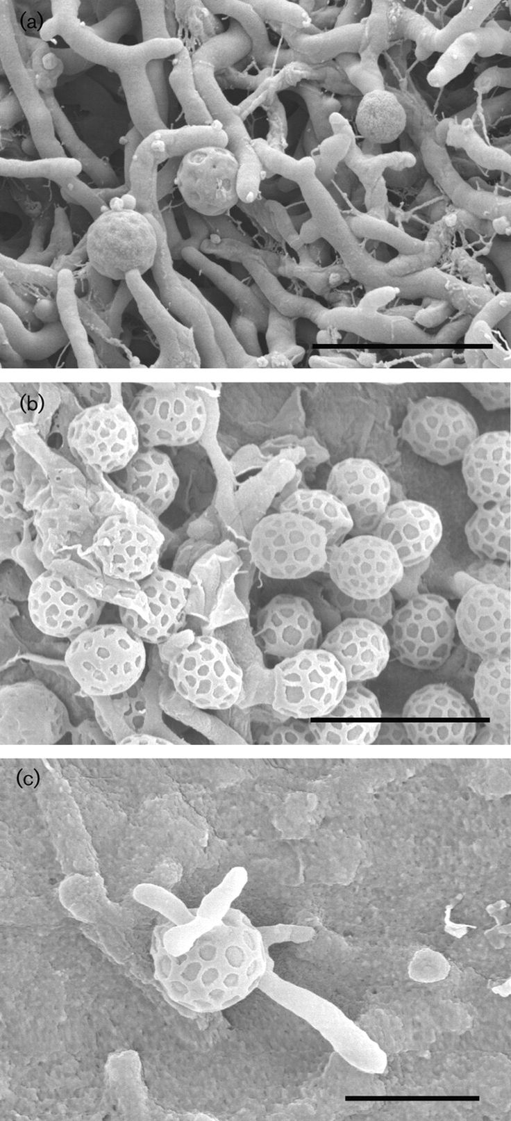 (a) Rugosimonospora acidiphila  (b, c) Rugosimonospora africana  [000.008.516]