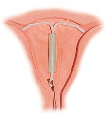 Mirena IUD Birth Control Complications - get the FACTS -- Symptoms of IIH/PTC from Mirena IUD may include:     *Vision Loss and Blindness     *Double Vision, Spotted or Blurred Vision     *Severe Headaches and Migraines     *Tinnitus, or a Ringing in the Ears     *Swelling of the Optic Disk (papilledema)