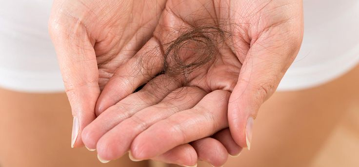 Successful alopecia hair loss treatment is something we all hunt for! This article completely covers the types, causes and treatments of alopecia for your insight.