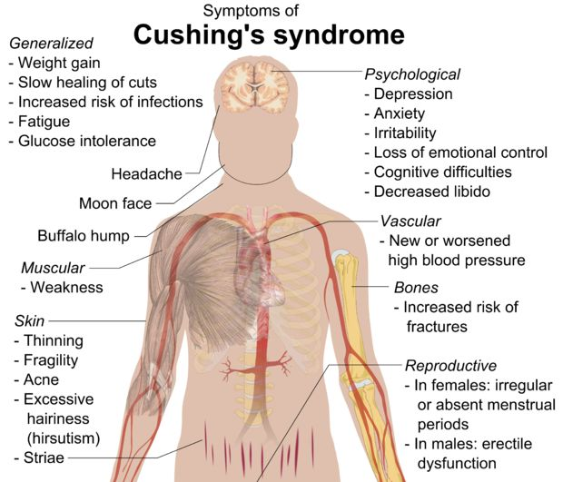 wikipedia.org Cushing's Syndrome-- also known as hypercortisolism, Itsenko-Cushing syndrome, and hyperadrenocorticism, is a collection of signs and symptoms due to prolonged exposure to cortisol