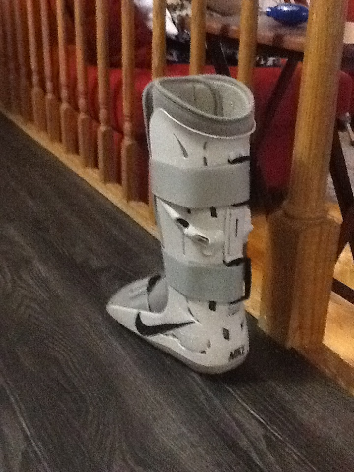 20 Best images about broken ankle on Pinterest | Very funny ...