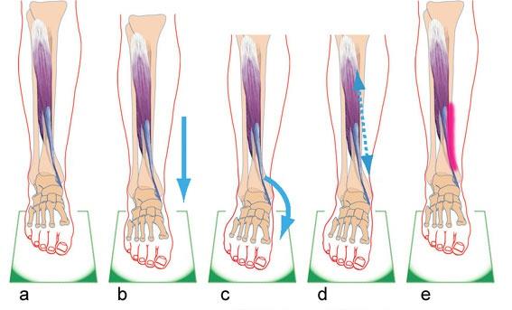 a) spieren van het onderbeen lopen van het onderbeen naar de voet  b) de voet beweegt naar beneden en komt op de grond  c) de voet zakt door d) de spier rekt uit  e) wat tot irritatie van het beenvlies kan leiden.