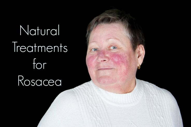 Rosacea is becoming more common even in teens. Here's a three-pronged approach for eliminating symptoms without drugs. http://www.thehealthyhomeeconomist.com/causes-treatment-for-rosacea/