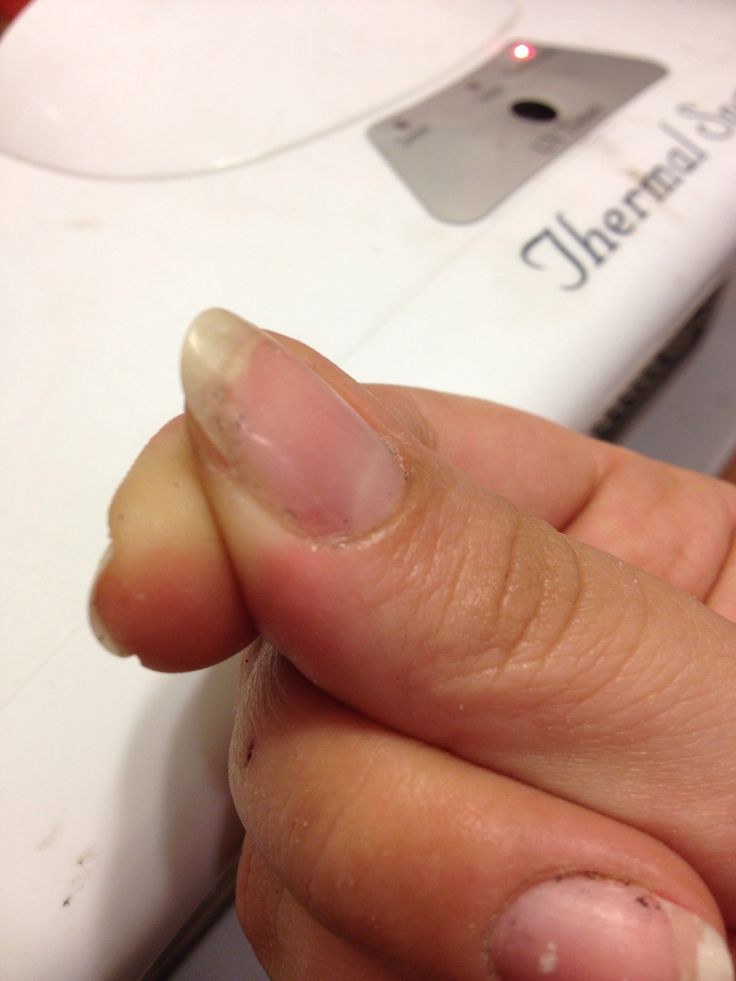 Fix a cracked nail with tissue or substitute a tea bag. My experience a tea bag works the best.