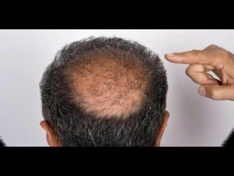Hair Loss Treatment | Male Pattern Baldness Cure