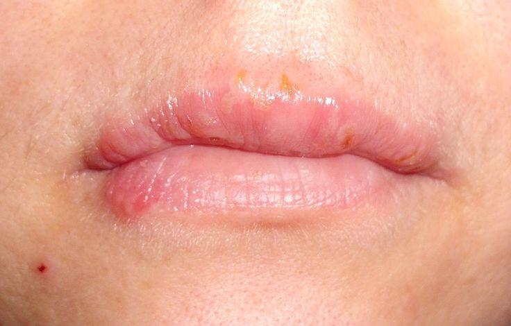 Puchýřové onemocnění, známe jako opar, vzniká v důsledku působení viru herpes simplex.