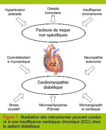 insuffisance cardiaque physiopathologie - Recherche Google