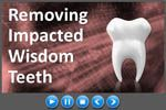 Should Wisdom Teeth Decisions Involve a Specialist? (Video) http://ift.tt/2naEuMz  Impacted wisdom teeth are a common dental problem.  While general dentists can do wisdom tooth extraction oral surgeons may be better suited to handle complicated impactions.  In our litigious society it is better to refer anything that can be done better by a specialist including molar endo advised a New York dentist. It is not worth the trouble and the patients will love you for referring. You lose patients…